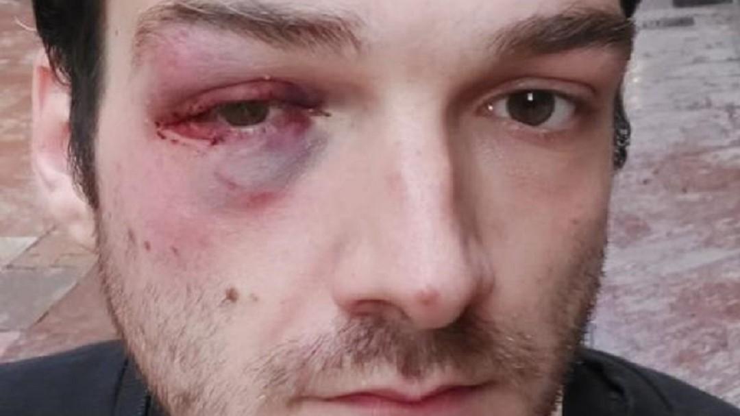 "Agresión homófoba en Asturias: ""Quiero ir por la puta calle sin que me maten por ser puto maricón"""