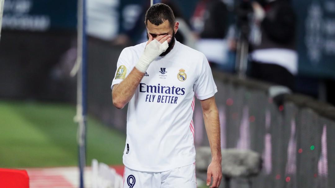 """""""Es una cagada"""": Antonio Romero señala uno de los errores que influyó en la derrota del Real Madrid"""