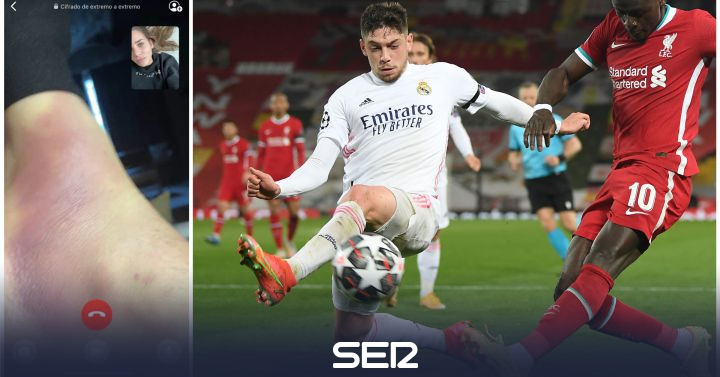 """""""Día y día pinchándote"""": así tenía el tobillo Fede Valverde minutos antes de jugar contra el Liverpool"""