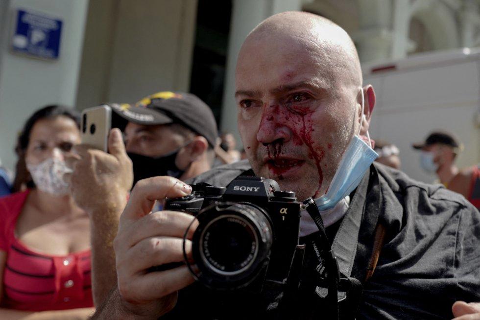 El fotógrafo español de AP Ramón Espinosa resultó herido durante las protestas contra el presidente cubano Miguel Diaz-Canel en La Habana.